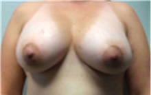 Breast Implant Removal After Photo by Mariam Awada, MD, FACS; Southfield, MI - Case 40152