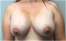 Breast Implant Removal Before Photo by Mariam Awada, MD, FACS; Southfield, MI - Case 40152