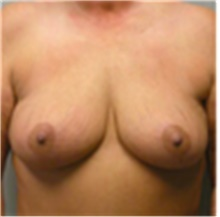 Breast Lift After Photo by Mariam Awada, MD, FACS; Southfield, MI - Case 40162