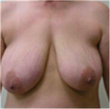 Breast Lift Before Photo by Mariam Awada, MD, FACS; Southfield, MI - Case 40162