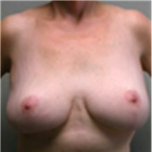 Breast Lift After Photo by Mariam Awada, MD, FACS; Southfield, MI - Case 40163