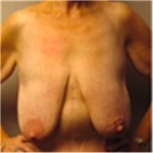 Breast Lift Before Photo by Mariam Awada, MD, FACS; Southfield, MI - Case 40163
