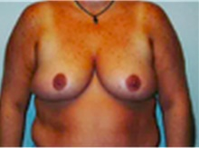 Breast Lift After Photo by Mariam Awada, MD, FACS; Southfield, MI - Case 40164