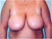 Breast Lift Before Photo by Mariam Awada, MD, FACS; Southfield, MI - Case 40164