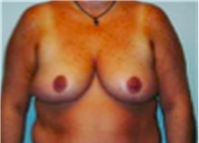Breast Reduction After Photo by Mariam Awada, MD, FACS; Southfield, MI - Case 40169