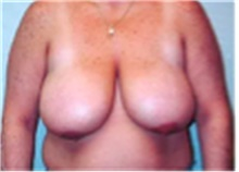 Breast Reduction Before Photo by Mariam Awada, MD, FACS; Southfield, MI - Case 40169