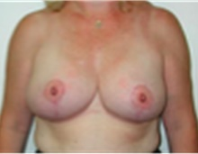 Breast Reduction After Photo by Mariam Awada, MD, FACS; Southfield, MI - Case 40170