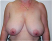 Breast Reduction Before Photo by Mariam Awada, MD, FACS; Southfield, MI - Case 40170