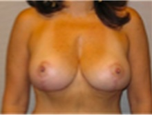 Breast Reduction After Photo by Mariam Awada, MD, FACS; Southfield, MI - Case 40174