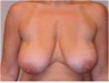 Breast Reduction Before Photo by Mariam Awada, MD, FACS; Southfield, MI - Case 40174