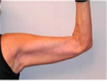 Arm Lift After Photo by Mariam Awada, MD, FACS; Southfield, MI - Case 40196
