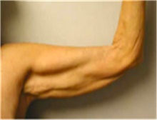 Arm Lift Before Photo by Mariam Awada, MD, FACS; Southfield, MI - Case 40196