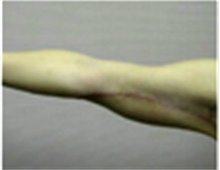 Arm Lift After Photo by Mariam Awada, MD, FACS; Southfield, MI - Case 40198