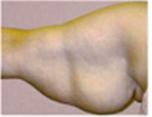 Arm Lift Before Photo by Mariam Awada, MD, FACS; Southfield, MI - Case 40198