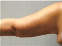 Arm Lift After Photo by Mariam Awada, MD, FACS; Southfield, MI - Case 40204