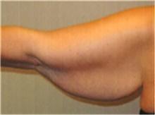 Arm Lift Before Photo by Mariam Awada, MD, FACS; Southfield, MI - Case 40204