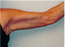 Arm Lift After Photo by Mariam Awada, MD, FACS; Southfield, MI - Case 40207