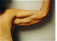 Arm Lift Before Photo by Mariam Awada, MD, FACS; Southfield, MI - Case 40207