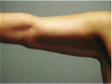 Arm Lift After Photo by Mariam Awada, MD, FACS; Southfield, MI - Case 40213