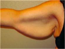 Arm Lift Before Photo by Mariam Awada, MD, FACS; Southfield, MI - Case 40213