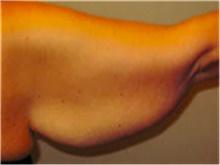 Arm Lift Before Photo by Mariam Awada, MD, FACS; Southfield, MI - Case 40214