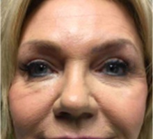Brow Lift After Photo by Mariam Awada, MD, FACS; Southfield, MI - Case 40215
