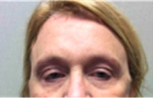 Brow Lift After Photo by Mariam Awada, MD, FACS; Southfield, MI - Case 40217