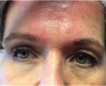Brow Lift After Photo by Mariam Awada, MD, FACS; Southfield, MI - Case 40219