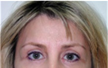 Brow Lift After Photo by Mariam Awada, MD, FACS; Southfield, MI - Case 40224