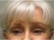 Brow Lift After Photo by Mariam Awada, MD, FACS; Southfield, MI - Case 40225