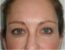 Brow Lift After Photo by Mariam Awada, MD, FACS; Southfield, MI - Case 40226