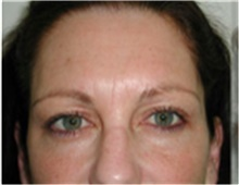 Brow Lift Before Photo by Mariam Awada, MD, FACS; Southfield, MI - Case 40226