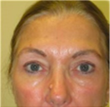 Brow Lift After Photo by Mariam Awada, MD, FACS; Southfield, MI - Case 40229