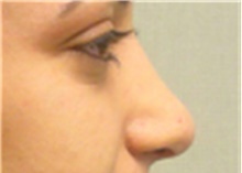 Rhinoplasty After Photo by Mariam Awada, MD, FACS; Southfield, MI - Case 40244