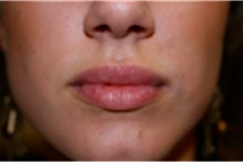 Dermal Fillers After Photo by Mariam Awada, MD, FACS; Southfield, MI - Case 40254