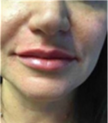 Dermal Fillers After Photo by Mariam Awada, MD, FACS; Southfield, MI - Case 40255