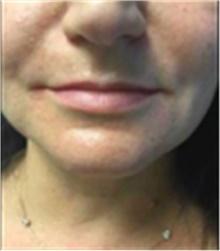 Dermal Fillers Before Photo by Mariam Awada, MD, FACS; Southfield, MI - Case 40255