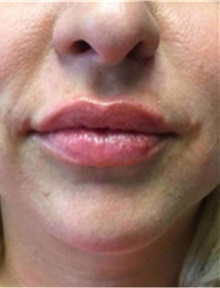 Dermal Fillers After Photo by Mariam Awada, MD, FACS; Southfield, MI - Case 40256
