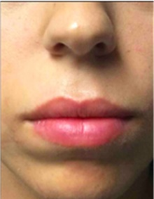 Dermal Fillers After Photo by Mariam Awada, MD, FACS; Southfield, MI - Case 40257
