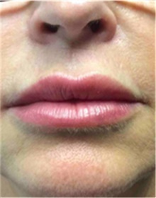 Dermal Fillers After Photo by Mariam Awada, MD, FACS; Southfield, MI - Case 40258