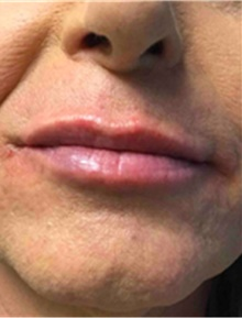 Dermal Fillers After Photo by Mariam Awada, MD, FACS; Southfield, MI - Case 40259