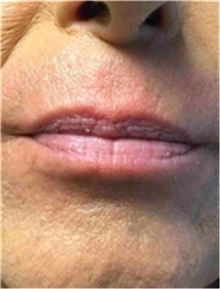 Dermal Fillers Before Photo by Mariam Awada, MD, FACS; Southfield, MI - Case 40259
