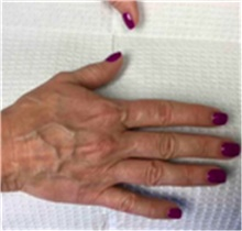 Dermal Fillers Before Photo by Mariam Awada, MD, FACS; Southfield, MI - Case 40260