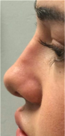 Dermal Fillers After Photo by Mariam Awada, MD, FACS; Southfield, MI - Case 40261