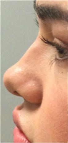 Dermal Fillers Before Photo by Mariam Awada, MD, FACS; Southfield, MI - Case 40261