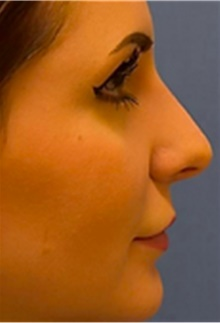 Dermal Fillers After Photo by Mariam Awada, MD, FACS; Southfield, MI - Case 40262