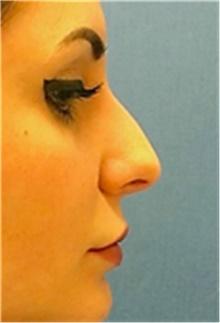 Dermal Fillers Before Photo by Mariam Awada, MD, FACS; Southfield, MI - Case 40262