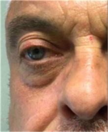 Dermal Fillers Before Photo by Mariam Awada, MD, FACS; Southfield, MI - Case 40264