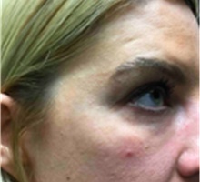Dermal Fillers After Photo by Mariam Awada, MD, FACS; Southfield, MI - Case 40265