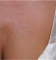Tattoo Removal After Photo by Mariam Awada, MD, FACS; Southfield, MI - Case 40298